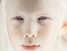 【世界が注目】全身真っ白になる遺伝子疾患「アルビノ」を持つ少女が神秘的すぎる!